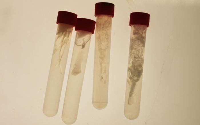 Space Bacteria @ Biohack:Design