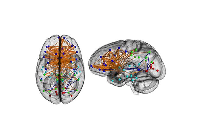 Карта нейронных связей вмозге женщины.