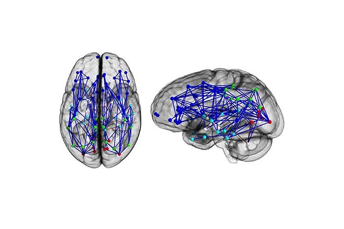 Карта нейронных связей вмозге мужчины.