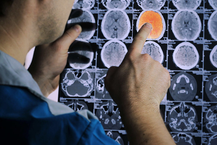 Научный эксперимент: как принять участие в исследованиях панических страхов, долговременной памяти и депрессии
