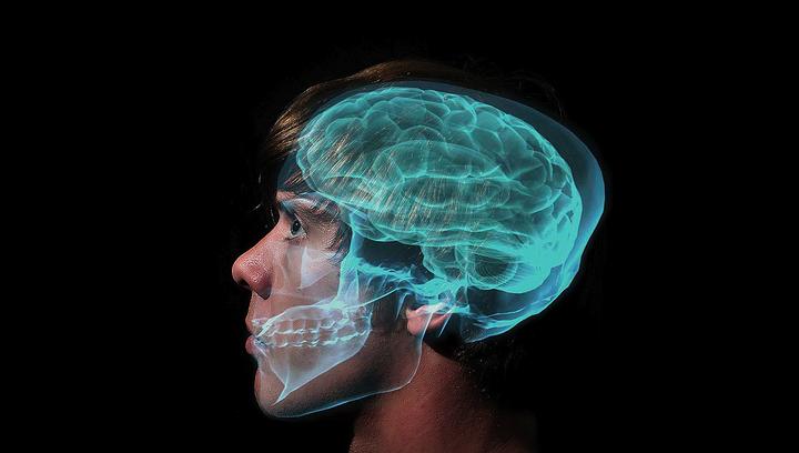 Фантомы в мозгу