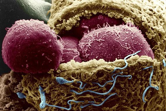Начались первые *клинические тесты по применению стволовых клеток*: кому это надо и зачем