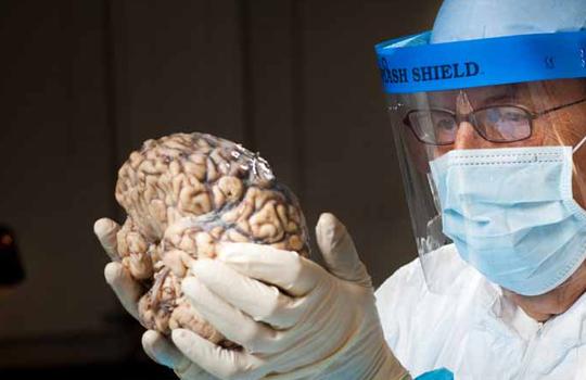 Интервью с молодым ученым о том, почему *нельзя есть  мозг* и что такое прионы